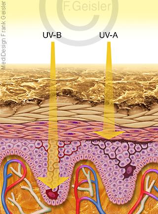 UV-Licht auf Haut, Melanozyten in Dermis Epidermis