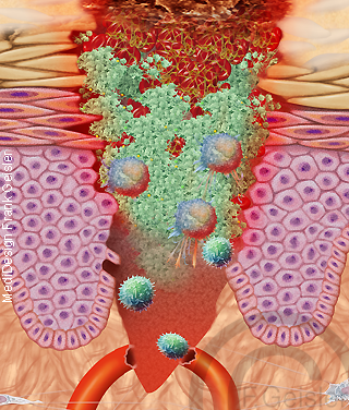 Haut, Entzündung Wunde Wundheilung