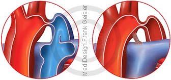 Herz mit Aortenisthmusstenose ISTA