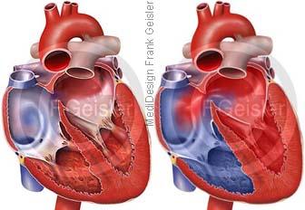Herz mit Atriumseptumdefekt ASD Vorhofseptumdefekt