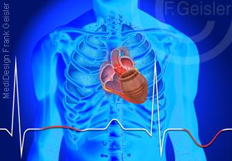 Herzerkrankung, EKG bei Herz bei Takotsubo-Stress-Kardiomyopathie