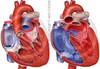 Herz mit Ebstein-Anomalie Trikuspidalklappe