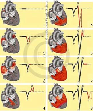 Herz Erregung Herzerregung und Erregungsausbreitung mit EKG-Kurve beim Sinusrhythmus