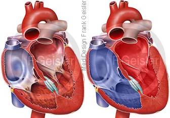 Herz mit Foramen ovale Occluder