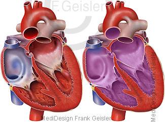 Herz mit Foramen ovale, ovales Loch pränatal