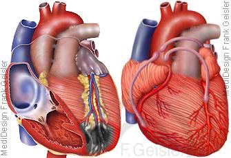 Herz mit Herzinfarkt und koronare Herzkrankheit mit Bypass