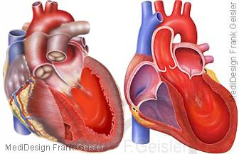 Herz mit Herzinsuffizienz und Tako-Tsubo Kardiomyopathie