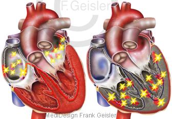 Herz Herzrhythmusstörungen Vorhofflimmern und Kammerflimmern