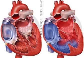 Herz mit Kammerscheidewand Ventrikelseptumdefekt VSD