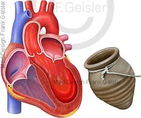 Herz mit Stress-Kardiomyopathie, Gebrochenes-Herz-Syndrom, Tako-Tsubo-Kardiomyopathie und Tintenfischfalle