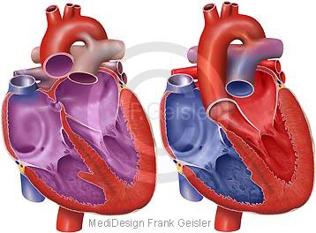 Herz beim Kind, praenatal und postnatal PDA