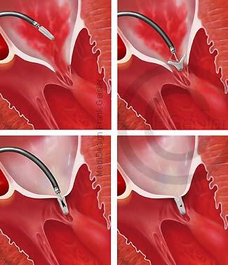 Erkrankung Herz, Mitralinsuffizienz Mitralklappe, OP MitraClip