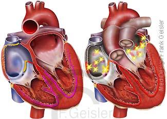 Herz Reizleitung Vorhofflimmern