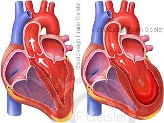 Herz mit Tako-Tsubo-Kardiomyopathie, Gebrochenes-Herz-Syndrom durch Stress