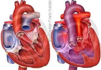 Herz mit Transposition Arterien TGA
