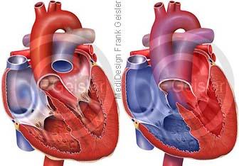 Herz mit Truncus arteriosus communis TAC