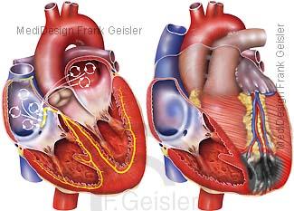 Herz, Flimmern Vorhof Vorhofflimmern und Infarkt Herzinfarkt Myokardinfarkt