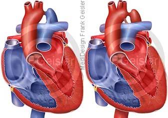 Herz mit praeduktale postduktale Stenose