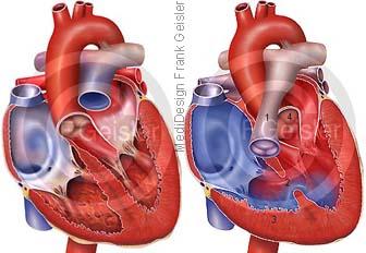 Herz mit praenatal Fallot Tetralogie