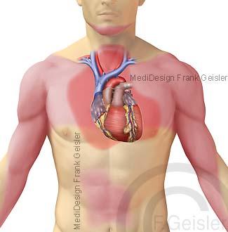 Erkrankung Herz Herzerkrankung Schmerzzone Herzschmerz bei Angina pectoris