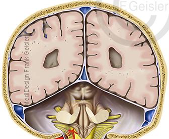 Anatomie Hirn Gehirn mit Hirnstamm Truncus cerebri, encephali des Menschen