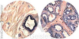 Histologie Brustdrüse, Brustgewebe nichtsezernierend und Laktation der Milchdrüsen