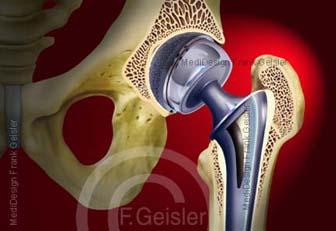 Hüfte mit Hüftgelenksarthrose und TEP Hüfttotalendoprothese