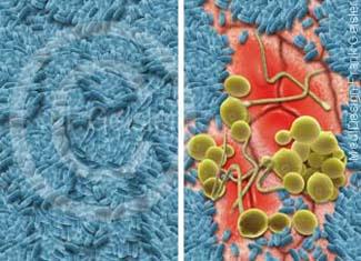 Immunsystem Darm mit Darmbakterien Bakterienflora Mykoflora auf Darmschleimhaut, Entzündung Epithelzellen