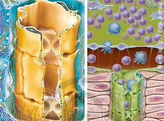 Immunsystem Lymphe in Lymphgefäß mit Lymphknoten