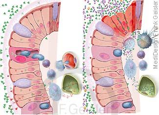 Immunsystem Darm, Schleimhaut mit Epithelzellen und Immunzellen