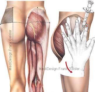 Injektion Hüfte, ventrogluteale Injektion nach Hochstetter in Muskulatur Gesäß und Oberschenkel