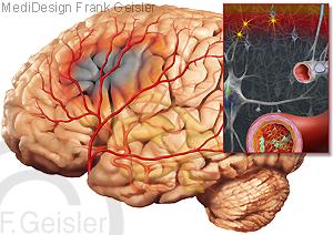 Ischämischer Schlaganfall, Apoplexie Gehirn mit Depolarisationswelle