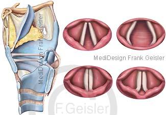Kehlkopf Larynx mit Stimmbänder Kehlkopfspiegelbilder mit Stimmlippen