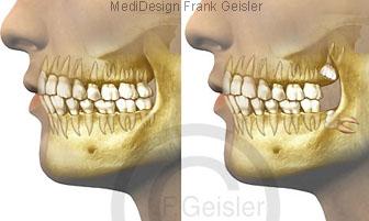 Kiefer Gebiss und Zähne des Menschen