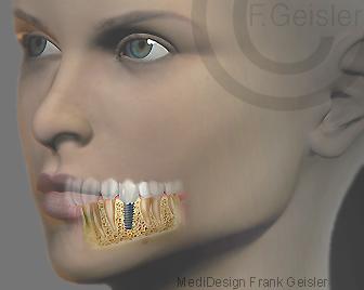 Kiefer-Implantat, Zahnimplantat im Unterkiefer einer Frau