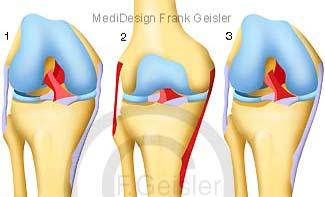 Funktion Knie, Kniegelenk mit Bänder Menisken