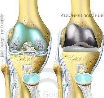Knie, Kniegelenk mit Kniearthrose und künstliches Gelenk Knieprothese TEP