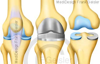 Kniegelenk mit Knieprothese, künstliche Gelenkfläche Knie