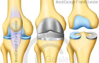 Knie Kniegelenk, künstliches Knie Knieprothese und künstliche Gelenkfläche