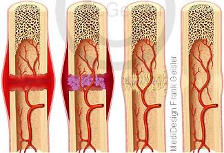 Heilung Knochenbruch, Knochenfraktur Fraktur, Knochen Knochenheilung, Fraktur Frakturheilung