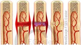 Knochenbruch Fraktur Knochen, Heilung Knochenbruch