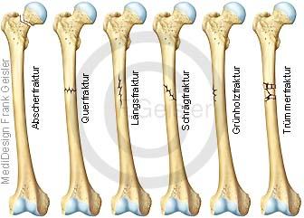 Knochenbrüche, Knochenbruch Fraktur Knochenfraktur der Knochen