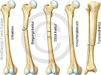 Knochenfrakturen, Knochenbruch Fraktur Knochenfraktur der Knochen