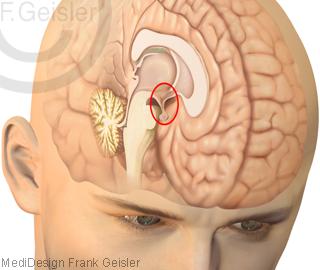 Kopf mit Gehirn, Lage Hypothalamus Hypophyse im Mittelhirn