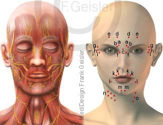 Kopf mit Muskeln und Nerven, Punkte für Injektionen mit Botox im Gesicht