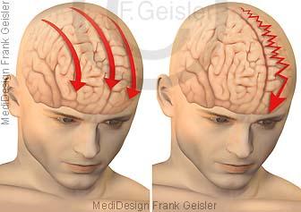 Kopfschmerzen, Spannungskopfschmerz und einseitiger Kopfschmerz bei Migräne