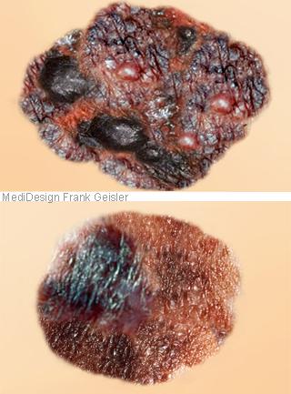 Krebs Hautkrebs malignes Melanom der Haut