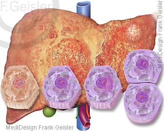 Leberzirrhose der Leber mit Lebertumor, Mutation Leberepithelzelle zu Krebszelle