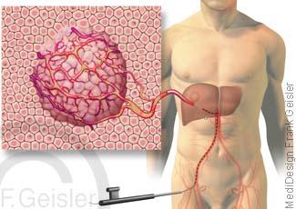Leberkrebs Leber, Therapie Tumor mit Chemo-Embolation Chemoembolisation