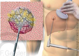 Leber Leberkrebs, Therapie Tumor mit Mikrowellenablation MWA